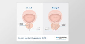Medical and technical illustrations